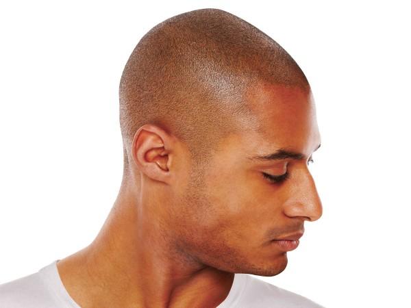 scalp pigmentering